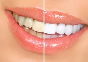 toothwhitening_clip_image003